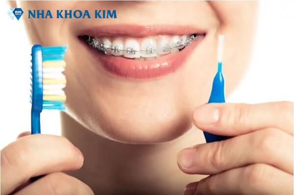 Niềng răng thẩm mỹ - Giải pháp mang lại nụ cười đẹp hoàn hảo 9