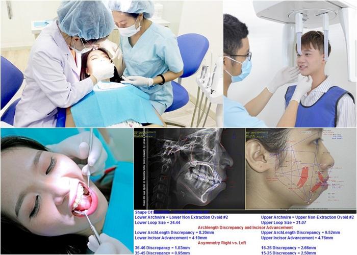 Niềng răng thẩm mỹ - Giải pháp mang lại nụ cười đẹp hoàn hảo 10