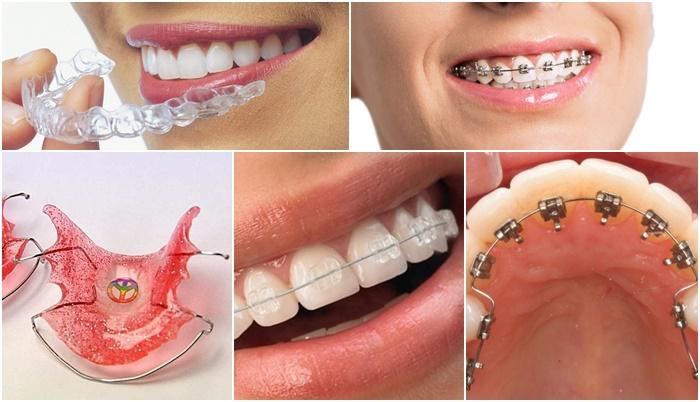 Niềng răng cửa - Giải pháp hoàn hảo cho răng hô, vẩu, thưa, lệch lạc 2