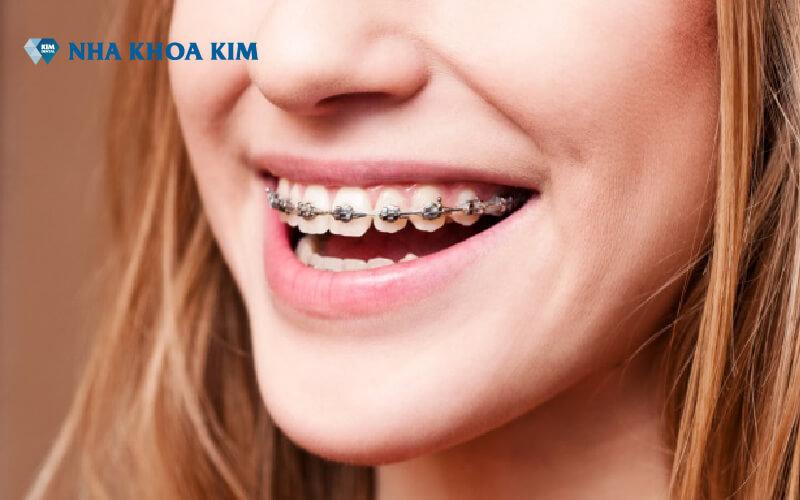 chi phí niềng răng Nha Khoa Kim