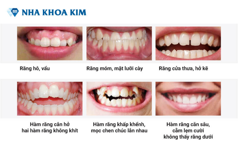 các trường hợp cần niềng răng
