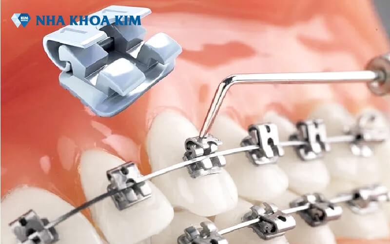 niềng răng Nha Khoa Kim