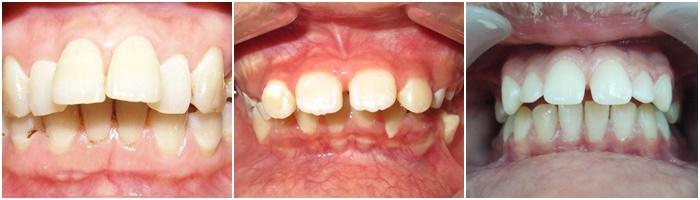 niềng răng hô vẩu - 9