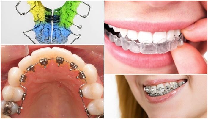 Chỉnh răng hô, móm, lệch lạc bằng phương pháp niềng răng thẩm mỹ 2