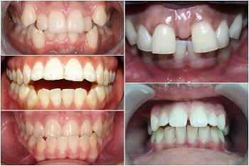 các trường hợp niềng răng