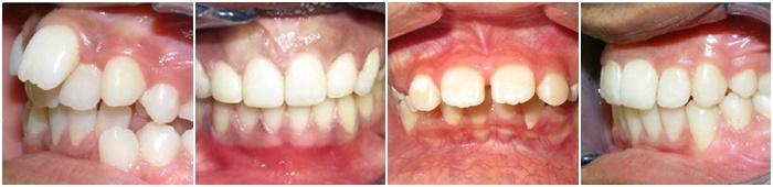 niềng răng hô vẩu - 8