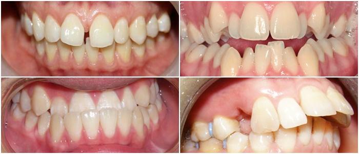 niềng răng trong suốt - 8