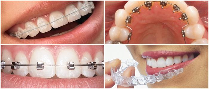 Niềng răng 1 hàm có được không, có mang lại hiệu quả không? 3