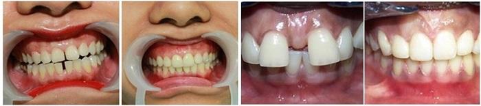 Niềng răng thưa - Khắc phục hoàn toàn thưa hở, duy trì trọn đời 2