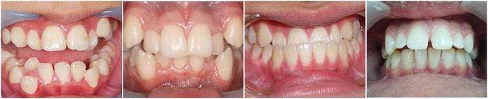 Tư vấn niềng răng - Thông tin giải đáp từ chuyên gia Nha Khoa KIM 2