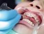 Niềng răng móm bao nhiêu tiền? Làm sao để tiết kiệm chi phí?