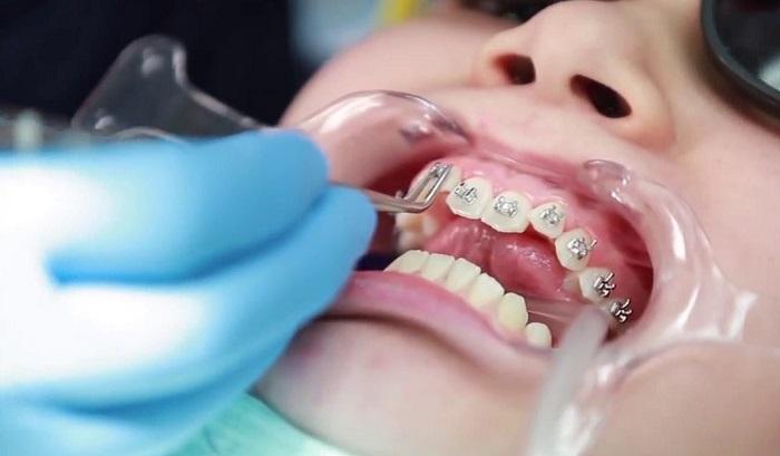 Niềng răng móm bao nhiêu tiền? Làm sao để tiết kiệm chi phí? 1