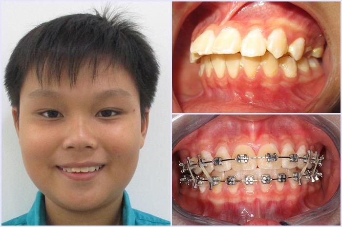 Niềng răng trẻ em an toàn tại Nha Khoa KIM - cha mẹ cần biết 3