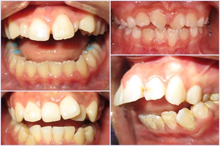 Niềng răng trẻ em an toàn tại Nha Khoa KIM - cha mẹ cần biết 4