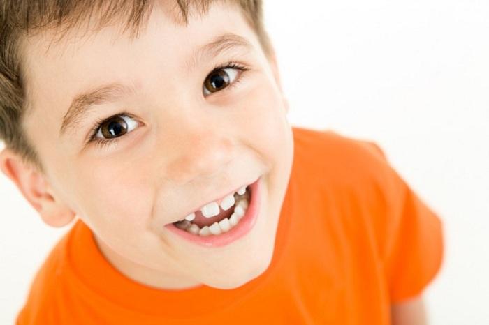 Niềng răng trẻ em an toàn tại Nha Khoa KIM - cha mẹ cần biết 1