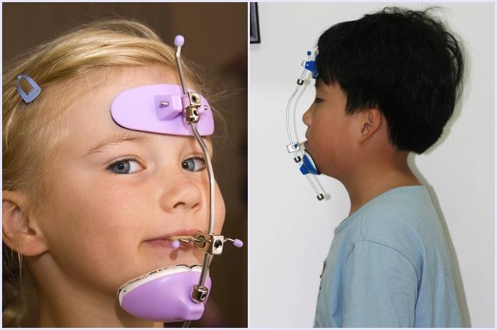 Niềng răng trẻ em an toàn tại Nha Khoa KIM - cha mẹ cần biết 2