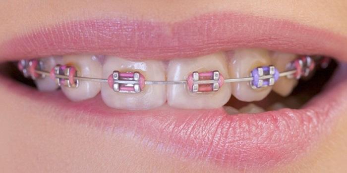 Sửa răng thẩm mỹ bằng phương pháp nào hiệu quả, an toàn? 2
