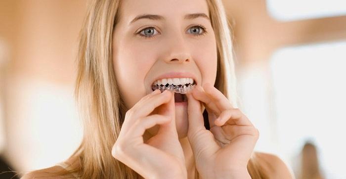 Liệu trình niềng răng trong suốt mất bao lâu thì kết thúc việc điều trị? 4