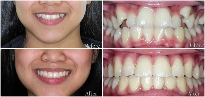 Tư vấn niềng răng - Thông tin giải đáp từ chuyên gia Nha Khoa KIM 4