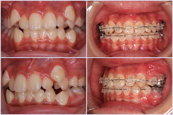 Niềng răng khểnh công nghệ 3D - Nhanh chóng, đẹp toàn diện 2