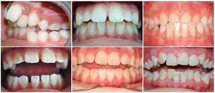 Niềng răng thẩm mỹ - Giải pháp mang lại nụ cười đẹp hoàn hảo 1