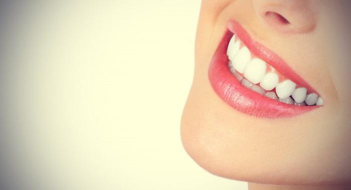 Niềng răng lộn xộn - Công nghệ 3D hiệu quả, thẩm mỹ cao 3