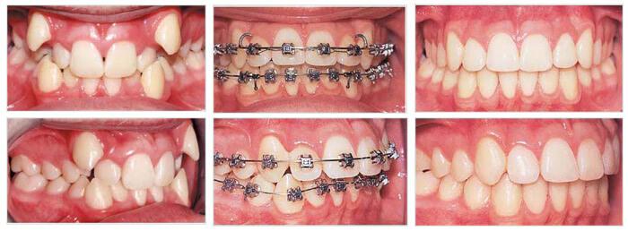 Niềng răng cửa - Giải pháp hoàn hảo cho răng hô, vẩu, thưa, lệch lạc 1