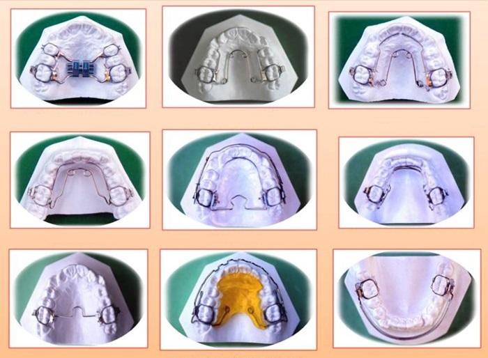 Niềng răng ốc nong rộng - Giải pháp cho hàm răng đều đẹp, không còn hô, móm 3