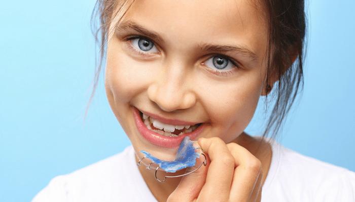 Niềng răng ốc nong rộng - Giải pháp cho hàm răng đều đẹp, không còn hô, móm 1