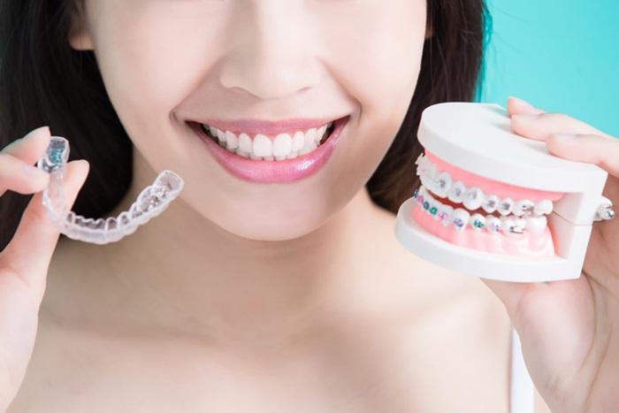 Niềng răng hô bằng kỹ thuật 3D hiệu quả theo đúng liệu trình 3