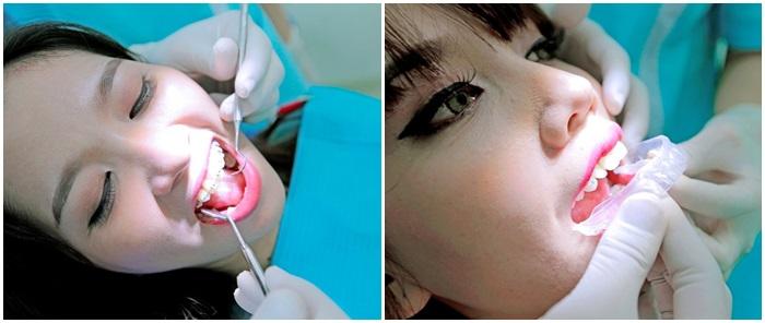 Niềng răng hô bằng kỹ thuật 3D hiệu quả theo đúng liệu trình 7