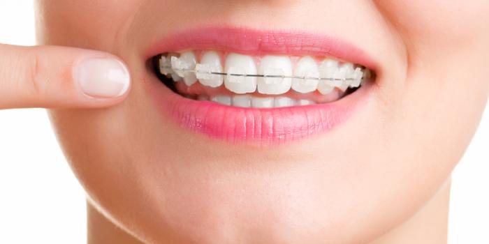 Niềng răng sứ - Phương pháp chỉnh nha thẩm mỹ hiệu quả cao 1