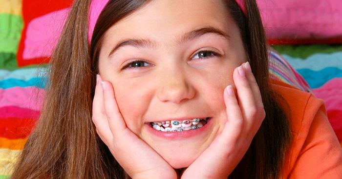 Răng trẻ mọc lệch phải làm sao? Sửa thế nào cho đều đẹp? 2