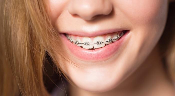 Niềng răng mắc cài kim loại giúp nắn chỉnh răng về đúng vị trí, cải thiện chức năng ăn nhai hiệu quả