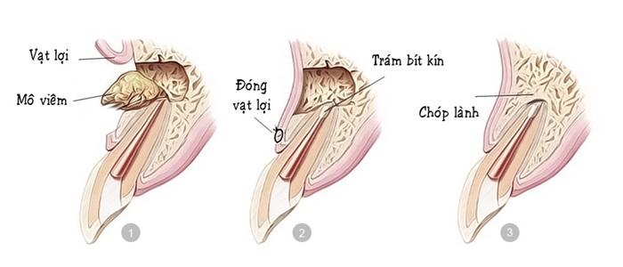 Phẫu thuật cắt chóp răng - Cho hàm răng luôn chắc khỏe 1