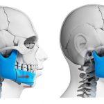 Phẫu thuật chỉnh hàm dưới có hiệu quả thật không?