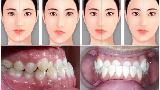 Phẫu thuật chỉnh hàm lệch – Bí quyết cho khuôn mặt hài hòa cân đối