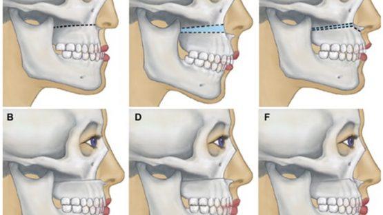 Giải pháp phẫu thuật hàm không niềng răng – Liệu có hiệu quả?