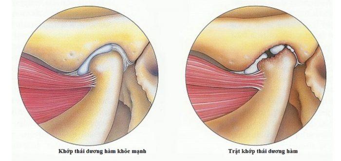 Phẫu thuật quai hàm chữa đau khớp thái dương hiệu quả 2
