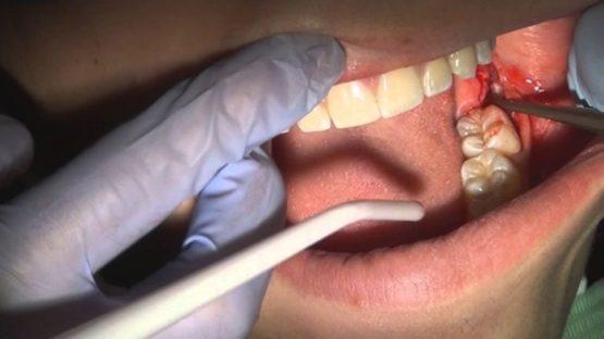 Phẫu thuật răng khôn và quy trình thực hiện ĐÚNG, CHUẨN