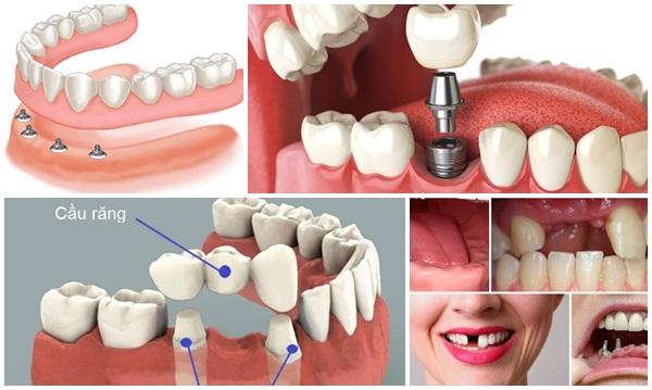 làm răng uy tín - 3