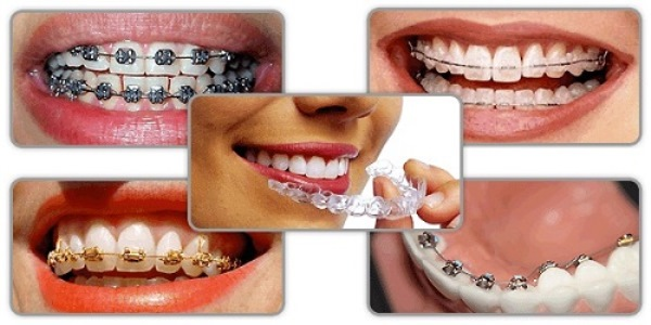 làm răng thẩm mỹ - 2