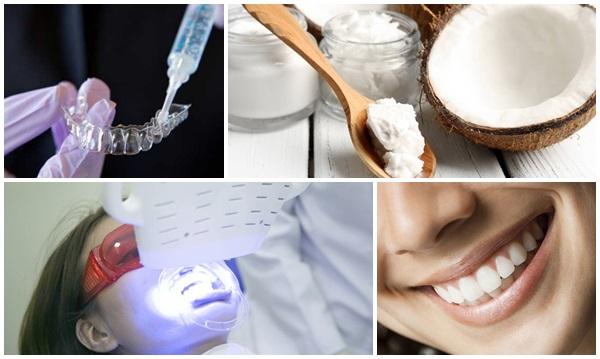 tẩy răng an toàn 1
