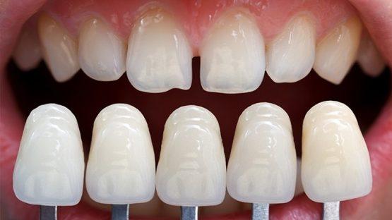 Đắp răng giả bằng kỹ thuật nha khoa hiện đại, thẩm mỹ cao