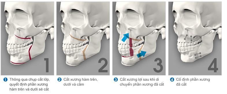 Trường hợp nào nên phẫu thuật hàm hô ? 3