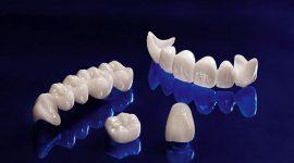 Bọc răng sứ ở đâu?Tiêu chí giúp đưa ra sự lựa chọn chính xác