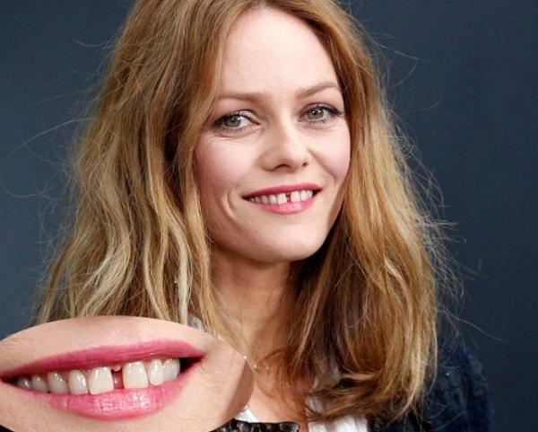 Làm răng cửa cân xứng, đều đẹp với cả khuôn hàm