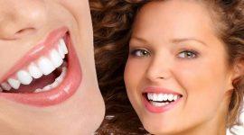 Bọc răng sứ cho răng thưa bằng công nghệ 3D tiên tiến