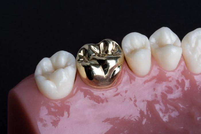 Răng giả kim loại - Lựa chọn tiết kiệm mà bền chắc, hiệu quả 1
