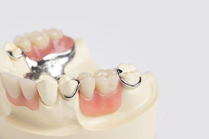 Làm răng giả an toàn bằng những kỹ thuật tiên tiến nhất 2
